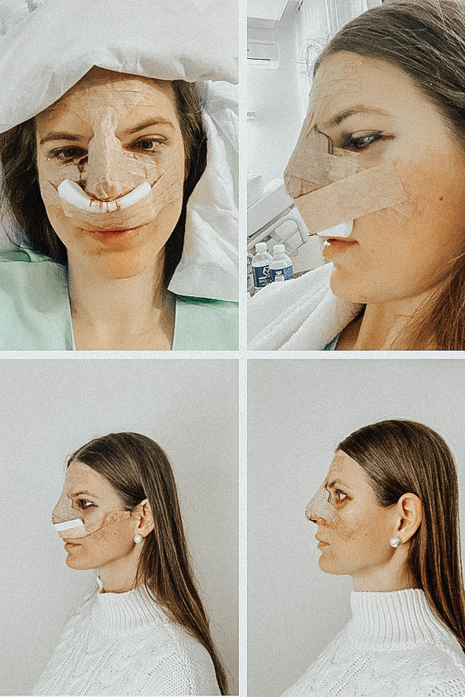 nose-job-rhynoplasty-fashion-blogger-london-nosies-operacija-2