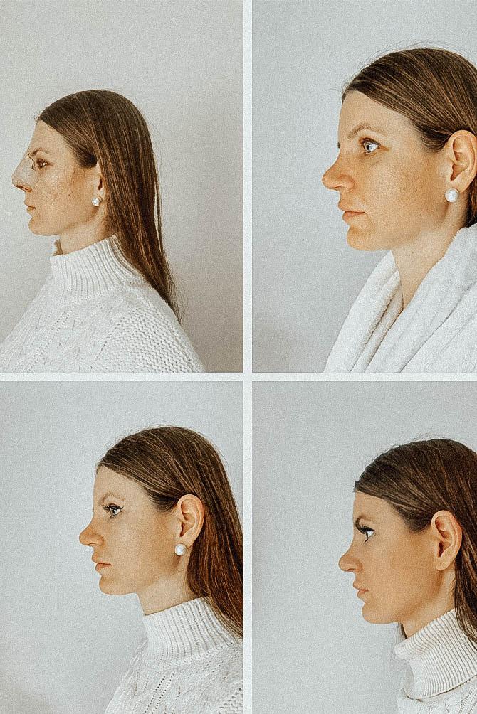 nose-job-rhynoplasty-fashion-blogger-london-nosies-operacija-3