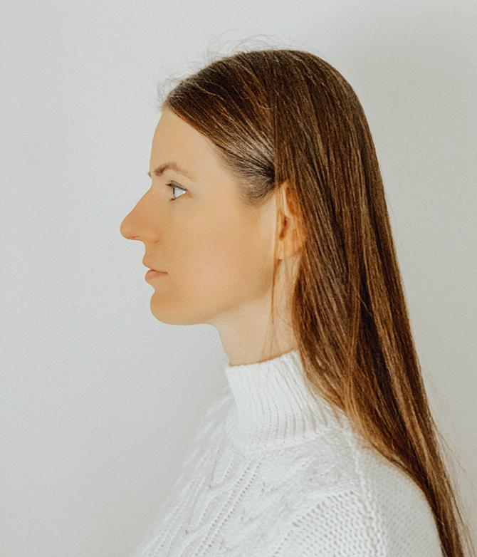 nose-job-rhynoplasty-fashion-blogger-london-nosies-operacija-4
