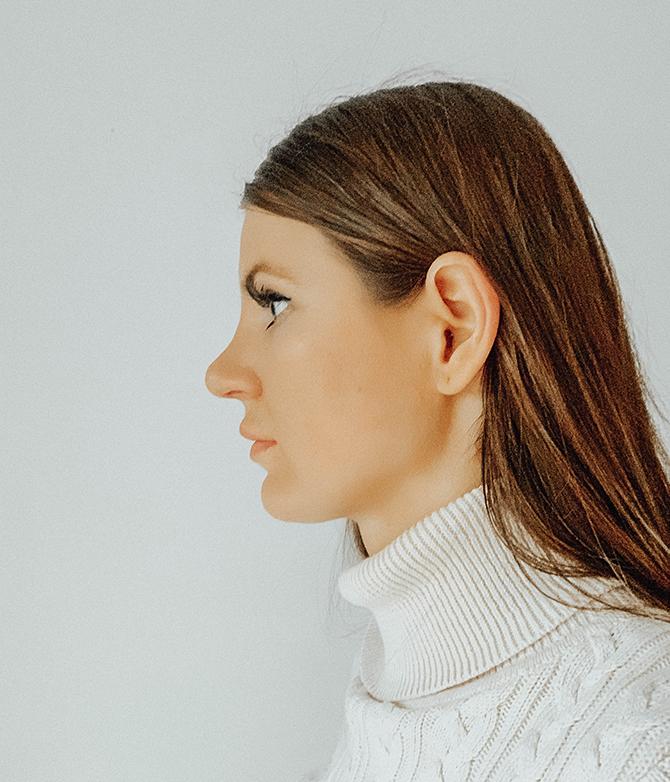 nose-job-rhynoplasty-fashion-blogger-london-nosies-operacija
